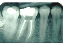 endodoncja sanok - dentysta z sanoka