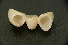 protetyka stomatologiczna - gabinet dentystyczny dermadent sanok