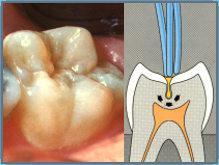 leczenie próchnicy Sanok - gabinet dentystyczny Dermadent