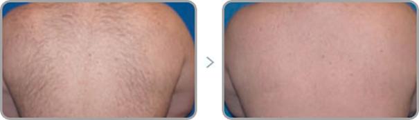 depilacja laserowa - efekty