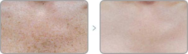 gabinet kosmetyczny sanok - usuwanie przebarwień