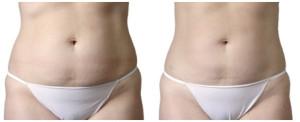 zabiegi redukujące tkankę tłuszczową