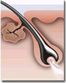 depilacja laserowa sanok